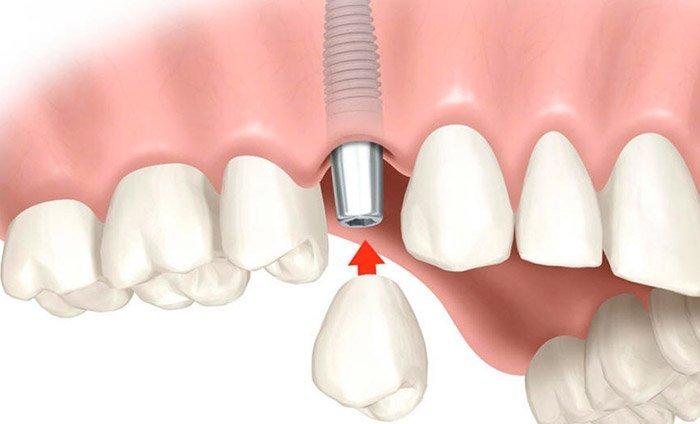 Prótesis dental en Zumaia