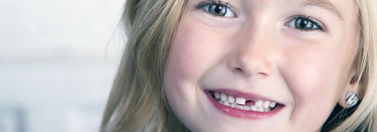 A-qué-edad-debo-llevar-a-mi-hijo-al-dentista
