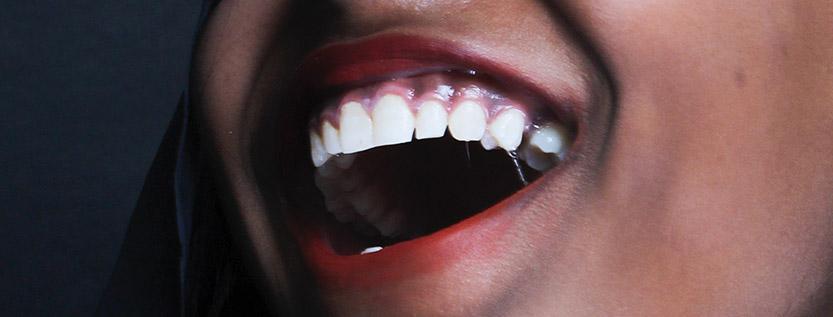 dientes-sensibles